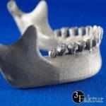 3D-Metalldruck-Titan-Kiefer